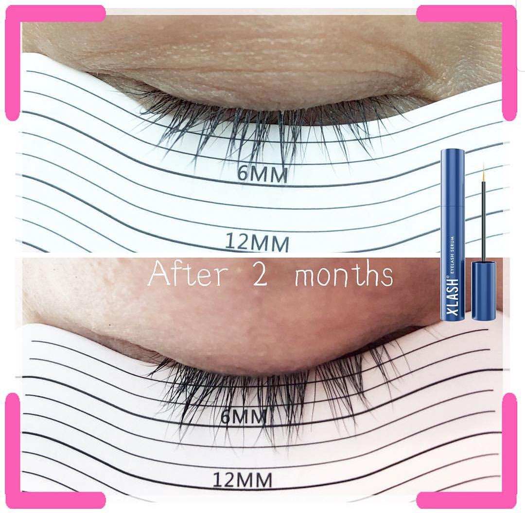 XLASH 阿米娅睫毛臻萃精华液使用两个月后的长度对比