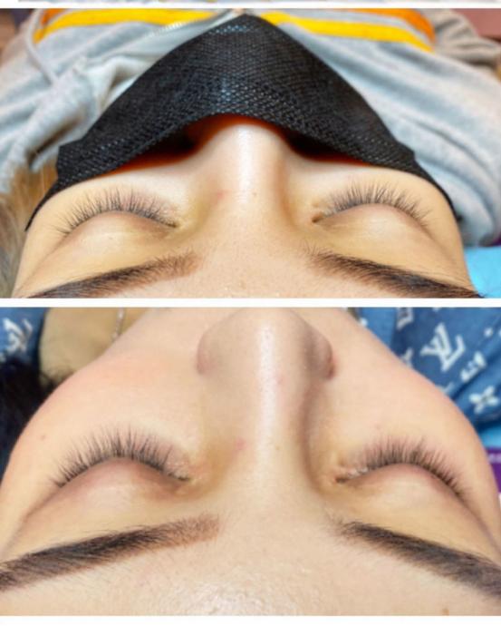 阿米娅睫毛增长液的使用效果